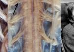 Amyotrofická laterální skleróza