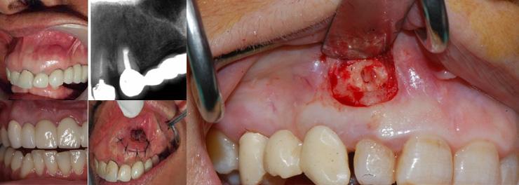 Zánět zubu antibiotika